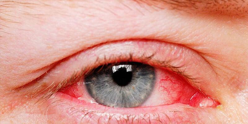 5 أسباب للإصابة بانحراف النظر