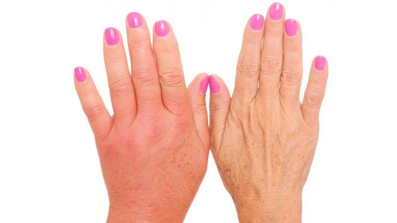 5 طرق لعلاج الأملاح الزائدة في الجسم